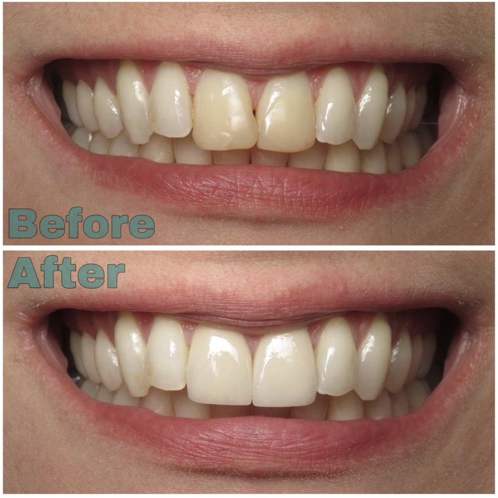Pebblewood Dental